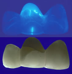 An experimental porcelain combination in a 3-unit fixed partial denture